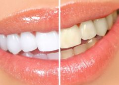Стоматология Smile Gallery – мы сделаем вашу улыбку идеальной!